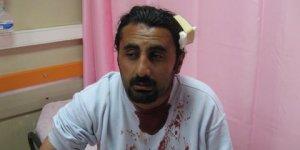 Sivas'taki Faşist Saldırının Fotoğrafları