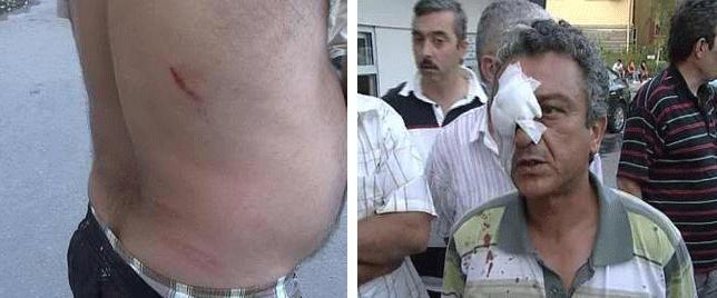 Zabıta dayağı Bakırköy'de hortladı